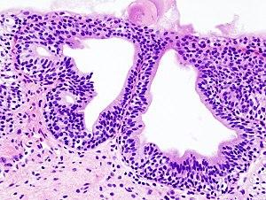 Cystitis glandularis at trigone