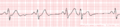 De-Rhythm premature (CardioNetworks ECGpedia).png