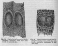 Descent of Man - Burt 1874 - Fig 55.png