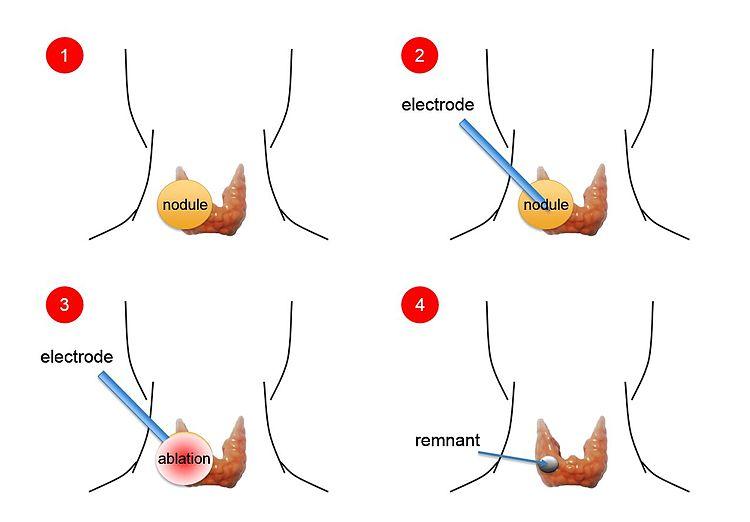 Diagram of Thyroid Ablation
