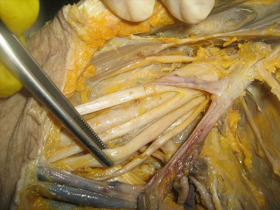 Dissection of axilla