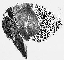Esame microscopico di ependimoma del quarto vetricolo.