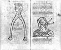 Fabricus Hildanus, Observationum et chirurgicarum... Wellcome L0026683.jpg