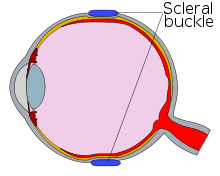 Diagram of an eye with a scleral buckle, in cross-section.