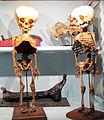 Istituto di anatomia patologica, museo, scheletri 04 idropisia.JPG