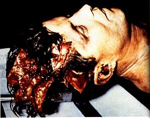 John F. Kennedy autopsy - A picture of President Kennedy's head taken at the beginning of the autopsy