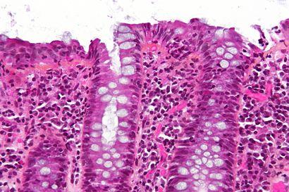 Lymphocytic colitis - hps - very high mag.jpg