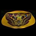 Pelvic MRI 06 21.jpg