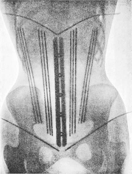 x-ray of a corset