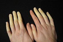 Raynaud-Syndrom.JPG