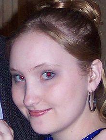 508dfdc57e75 Φαινόμενο κόκκινων ματιών - Βικιπαίδεια