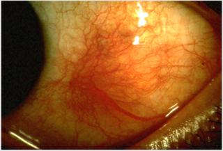 Scleritis Human disease