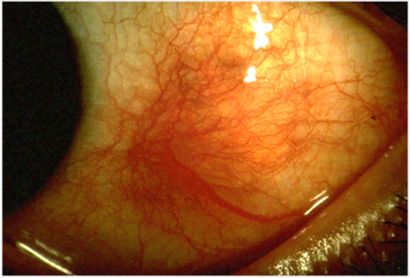 In this picture, the eyeball shows a large red inflamed spot on its sclera, a symptom of scleritis, just left of the iris.
