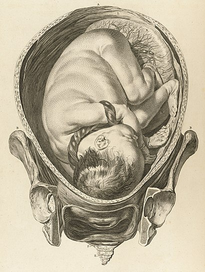 Tab IX; Foetus in utero with umbilical cord wrapped Wellcome L0064782 (cropped).jpg
