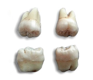 Wisdom tooth Set of molars that erupt later in life