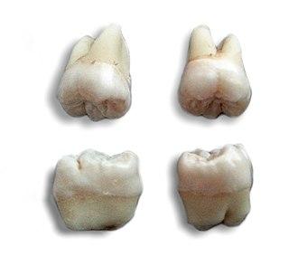 Wisdom tooth - Wisdom teeth