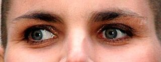 Exotropia Visual disorder where eyes work independently