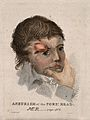 A man with an aneurism on his forehead. Coloured stipple etc Wellcome V0009647.jpg