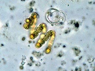 Nostocaceae - Anabaena spiroides