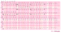 Arvd ecg3 (CardioNetworks ECGpedia).png