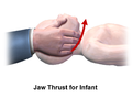 CPR Infant Jaw Thrust.png