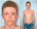 Clinical characteristics of individuals with MDP syndrome Figure 1.png