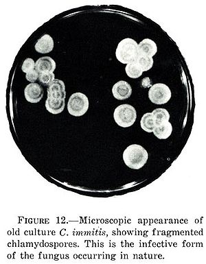 Coccidioides - C. immitis