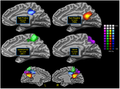Connectivity-based parcellation of human posteromedial cortex.png