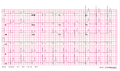 De-12leadpericarditis (CardioNetworks ECGpedia).png
