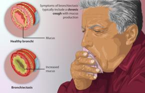 Bronchiectasis - Wikipedia