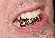 Grill (jewelry) - Wikipedia