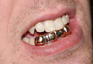 Grill (jewelry) - A gold dental grill