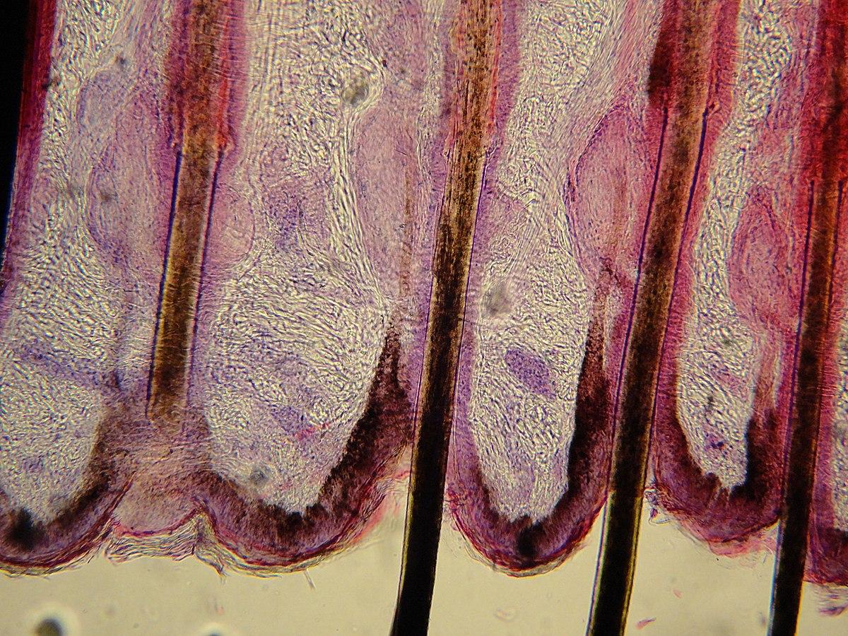 capilar pe penis