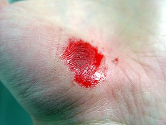 Wound healing - Image: Hand Abrasion 32 minutes after injury