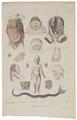 Homo sapiens - Div. afwijkingen - 1700-1880 - Print - Iconographia Zoologica - Special Collections University of Amsterdam - UBA01 IZ19600174.tif