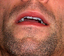 Mouth by David Shankbone.jpg