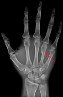 DP (PA) right hand x-ray showing fracture at the neck of fourth metacarpal bone