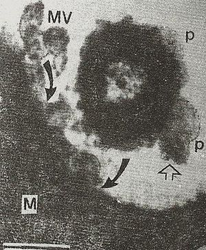 Membrane vesicle trafficking - Fig.3 Transmission electron micrograph of human Salmonella organism bearing periplasmic organelles, (p, line arrow) on its surface and releasing bacterial outer membrane vesicles (MV) being endocytosed (curved arrow) by macrophage cell (M) in chicken ileum in vivo.