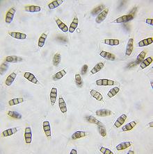 Conídios de Pestalotiopsis microspora