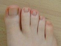 sarkalja a lábujjak közötti kezelést)