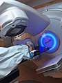 Radiation therapy for cancer.jpg