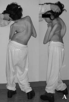 15ti letá dívka s Rettovým syndromem