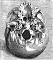 Skull illustration, 16th century, in Volcher Coiter Wellcome L0019055.jpg