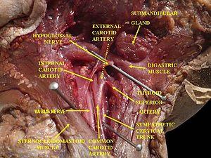 Cervical ganglia - Image: Slide 1EBAB