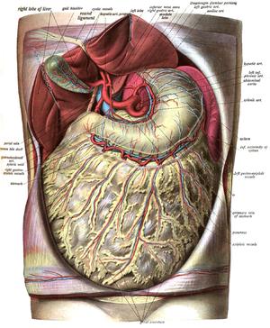 omental infarction wikipedia