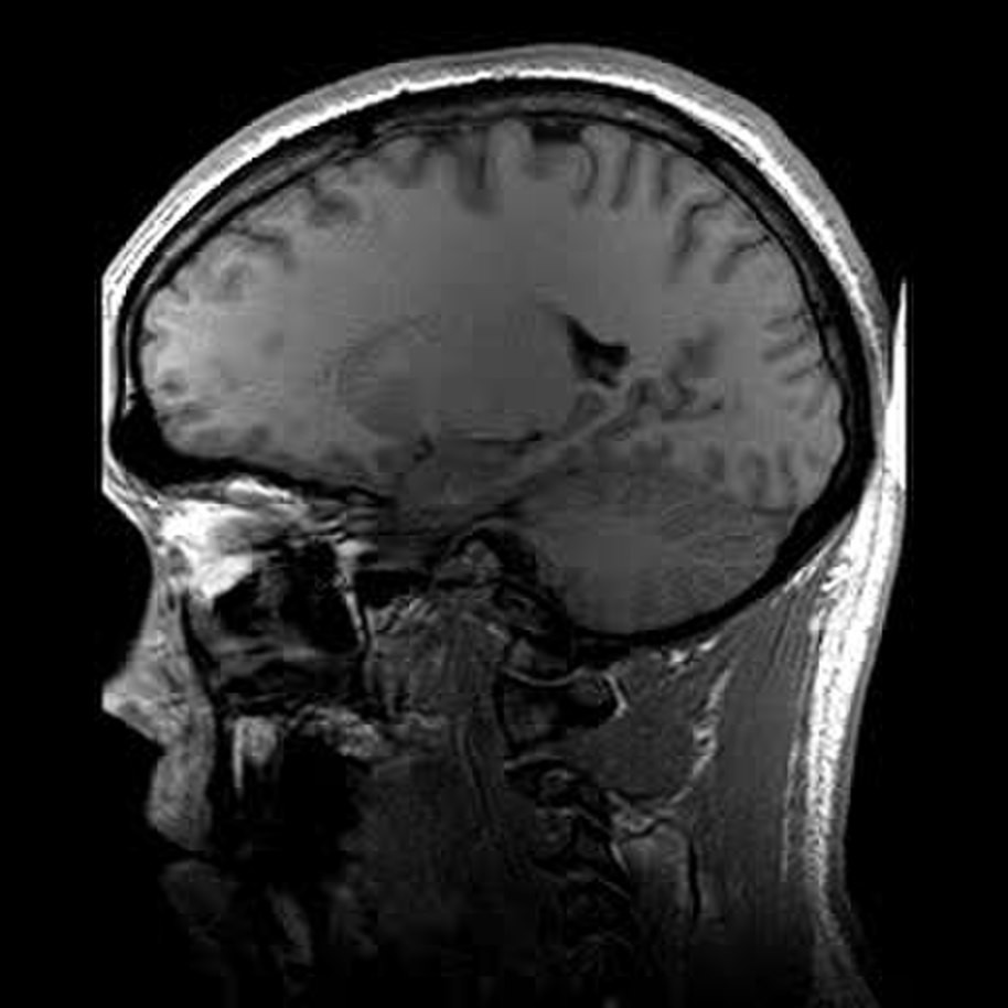 MRI scans - The complete information and online sale with