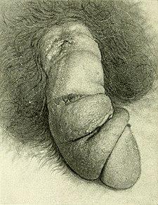 Nádor na penisu