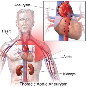 Thoracic Aortic Aneurysm.png