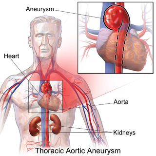 Thoracic aortic aneurysm aortic aneurysm that is located in the thoracic aorta