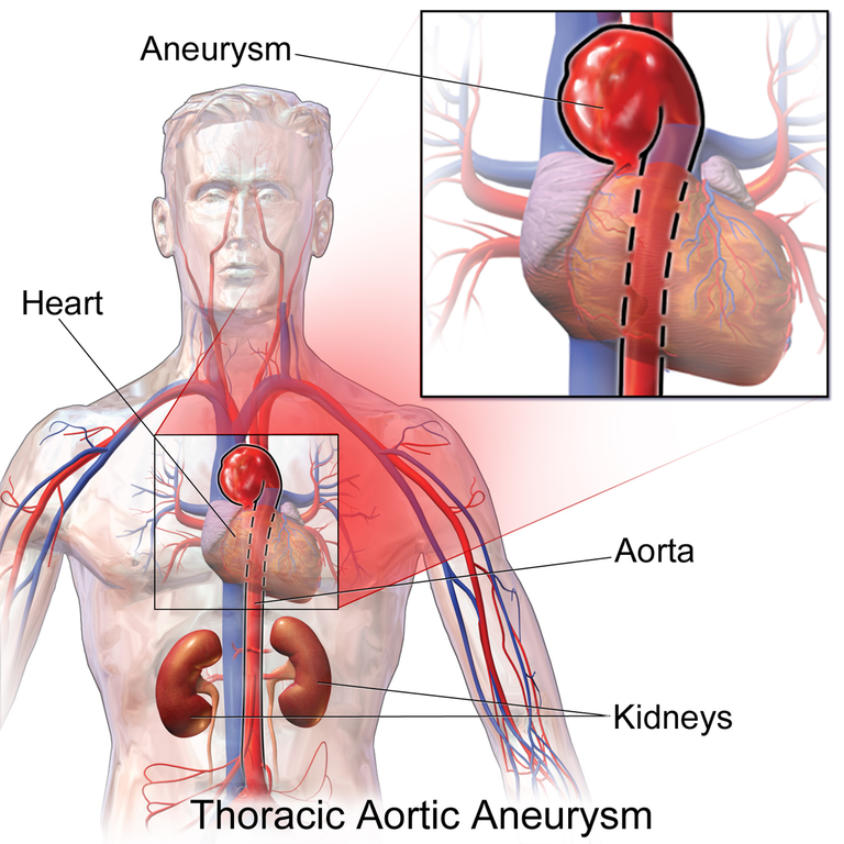 File:Thoracic Aortic Aneurysm.png - Wikimedia Commons